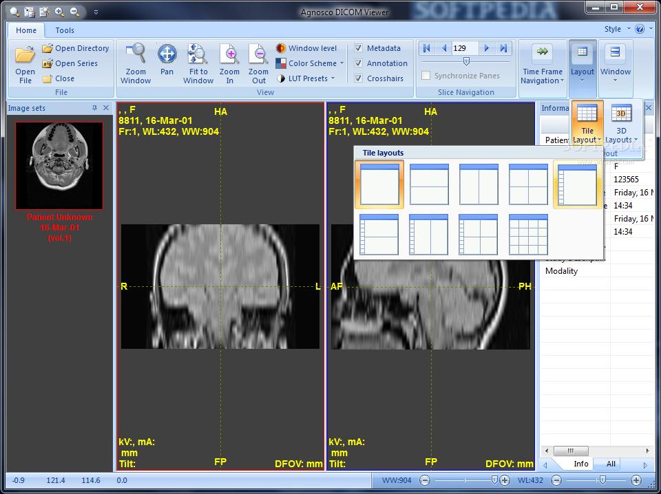 Agnosco DICOM Viewer - Download Free with Screenshots and Review